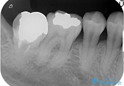 一番奥歯の後ろに虫歯が 処置の難しい虫歯の治療前