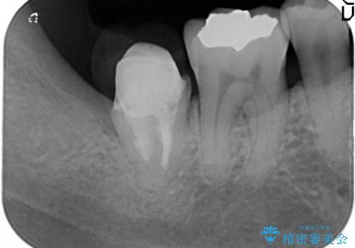 一番奥歯の後ろに虫歯が 処置の難しい虫歯の治療中