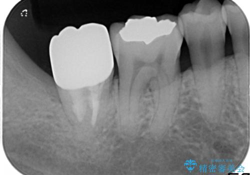 一番奥歯の後ろに虫歯が 処置の難しい虫歯の治療後