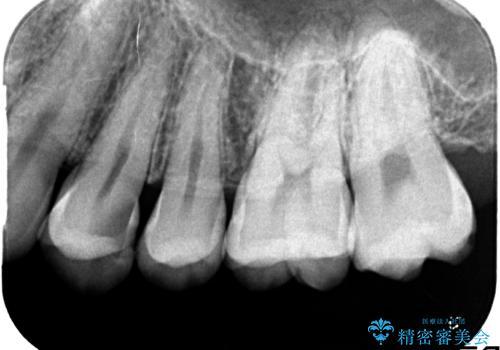気づかないうちに大きな虫歯が 神経を保存し、セラミックで修復の治療前