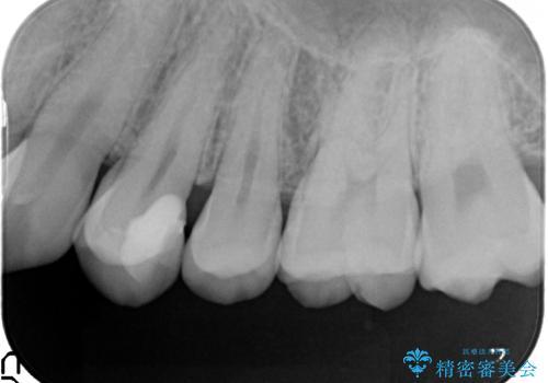 気づかないうちに大きな虫歯が 神経を保存し、セラミックで修復の治療後