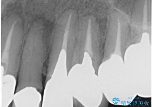 前歯の低クオリティな治療の実態 妥協無い治療で根本からやり治すの治療前