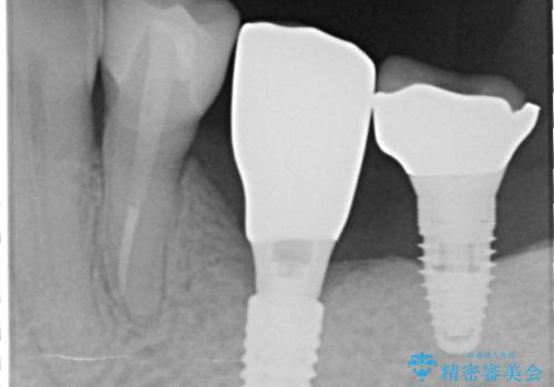 奥歯がない インプラント治療でかみあわせを回復の治療後
