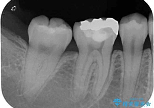 目立つ奥歯の銀歯をセラミックインレーにの治療前