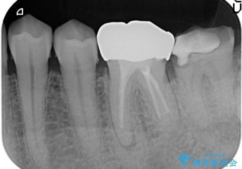 歯冠長延長術を併用した審美的歯科治療の治療前