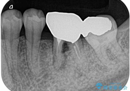 見えない歯周病 長期予後を見据えてインプラントにの治療前