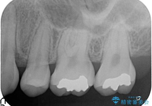 一度治療した歯が虫歯に セラミックインレーで治療の治療前