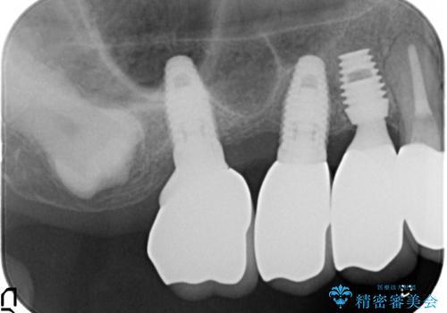 薄い骨にもインプラントを スプリットクレスト+ショートインプラントの応用の治療後