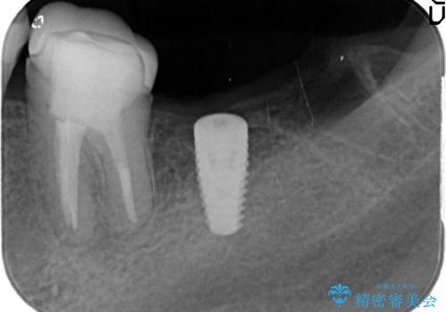 最後方臼歯のインプラント補綴の治療中