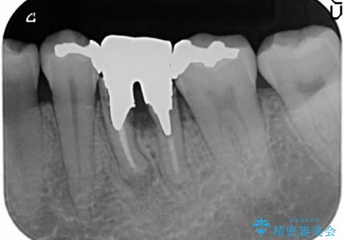 深い虫歯により抜歯となった奥歯 インプラント治療でかみ合わせを回復するの治療前