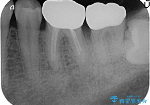 歯冠長延長術を併用した審美的歯科治療の治療後