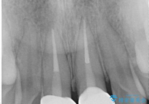 出っ歯をセラミックで治したい の治療後