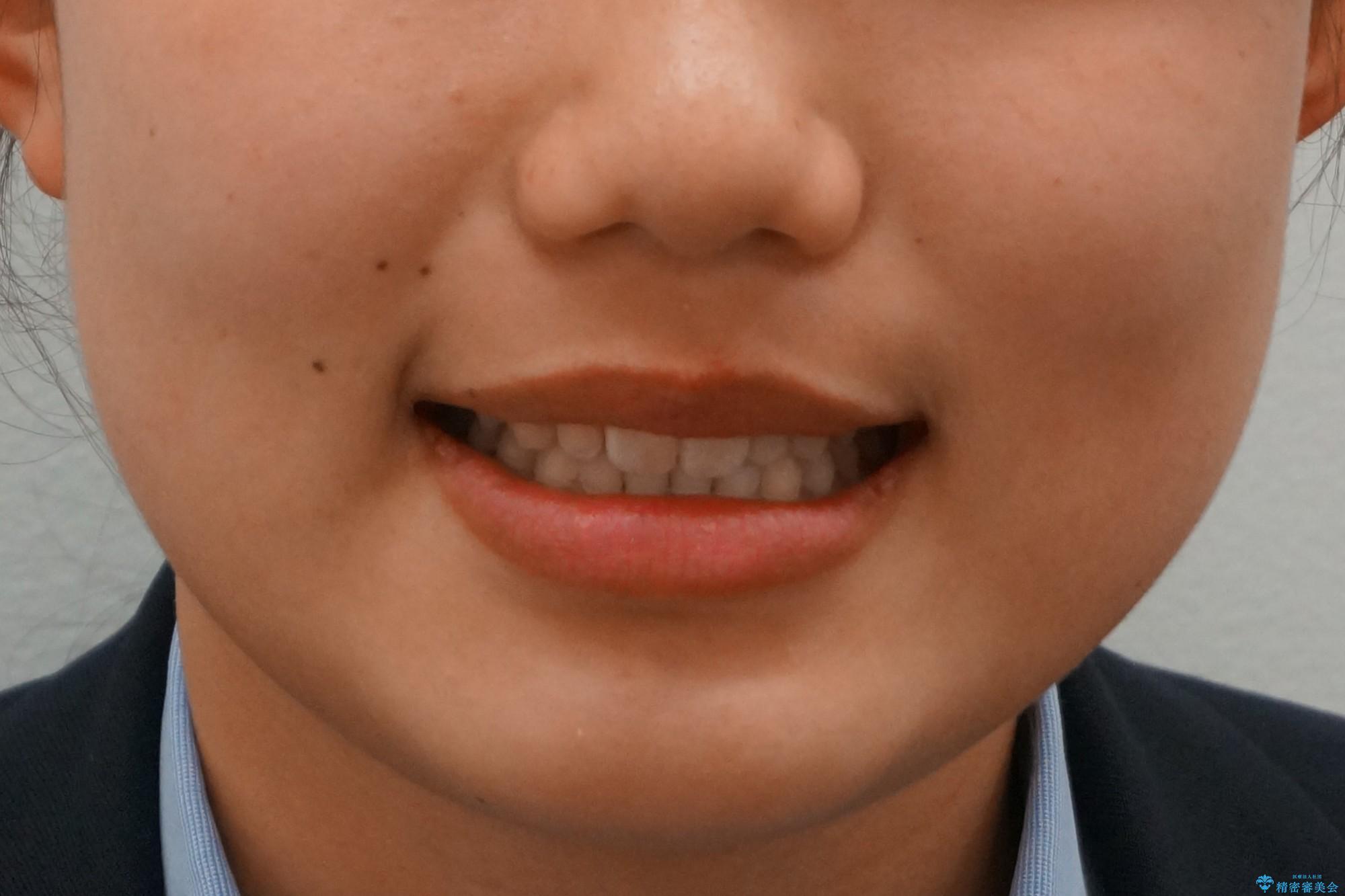 前歯のすきま 矯正治療とセラミックで小さな歯を形良くの治療後(顔貌)