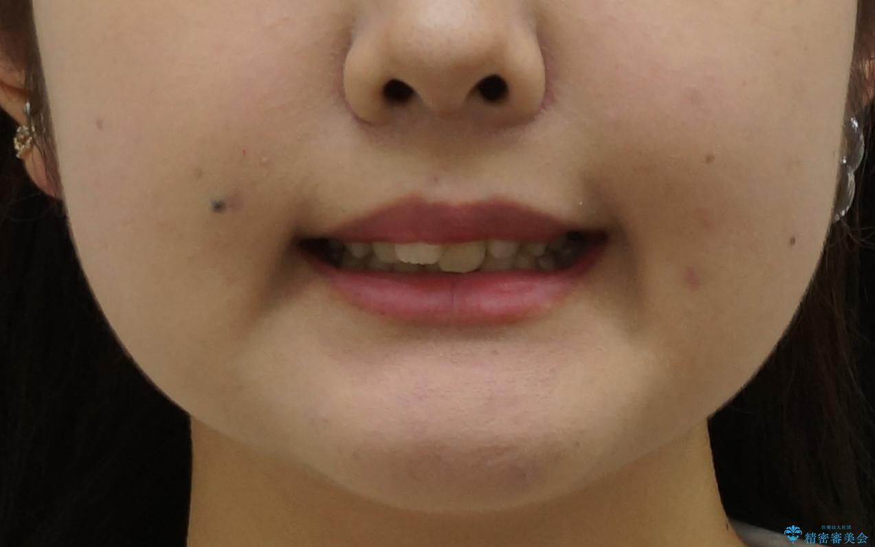 出っ歯をセラミックで治したい の治療前(顔貌)
