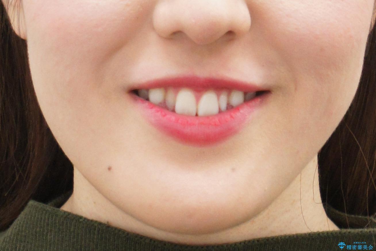 矮小歯 インビザラインとセラミックで美しくの治療前(顔貌)