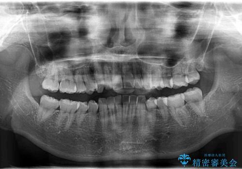 インビザラインで出っ歯を改善する 抜歯をしないinvisalign治療の治療前
