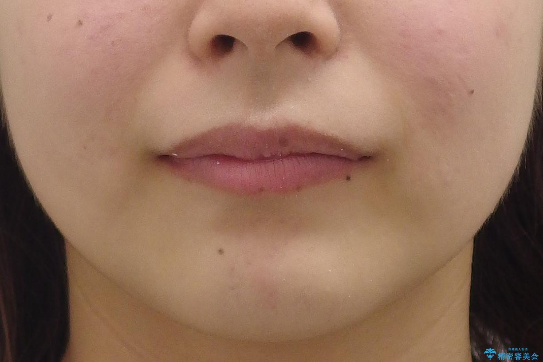 前歯のがたがた 前歯が内側に傾いているの治療前(顔貌)