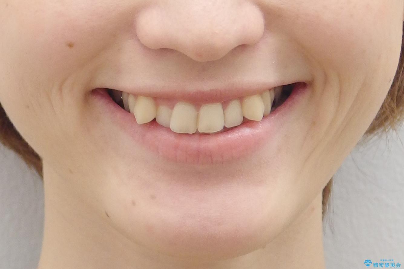 抜かない、削らない矯正 大人も上顎を骨から広げますの治療前(顔貌)