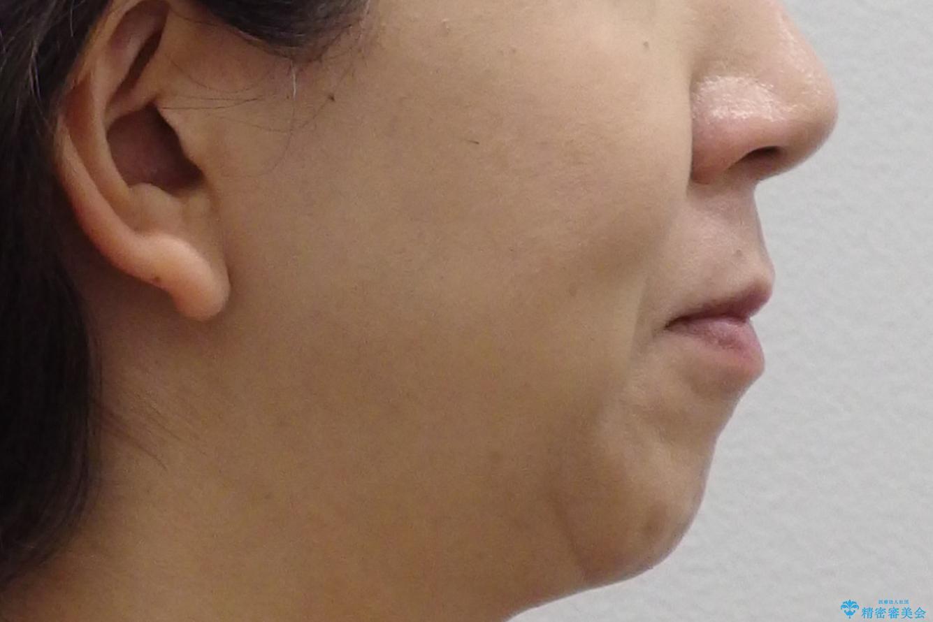 40代女性 前歯の重なり あきらめずに矯正の治療前(顔貌)