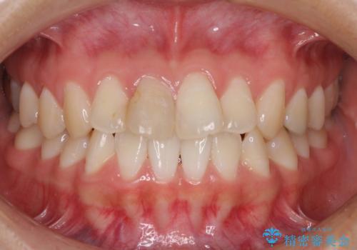 変色した歯をセラミックにしたい 歯自体が変色している場合の参考用2の治療前