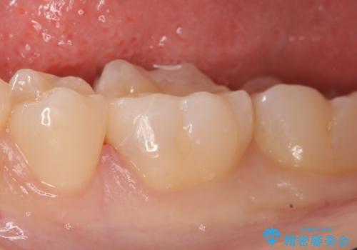 セラミックインレー しみる歯の治療の治療後