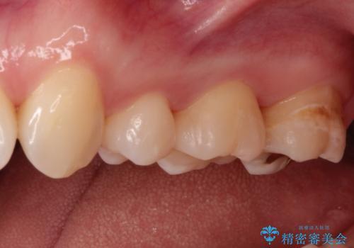 一度治療した歯が虫歯に セラミックインレーで治療の治療後