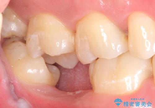 [20代男性] インプラント 失った歯の治療の治療前