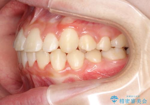 永久歯が生えてこない ワイヤー矯正で複雑な状態を正常咬合へ誘導するの治療後