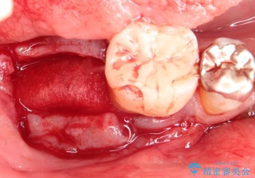 奥歯が痛い。骨増生を併用したインプラントの治療前