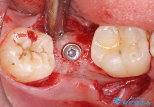 [20代男性] インプラント 失った歯の治療の治療中