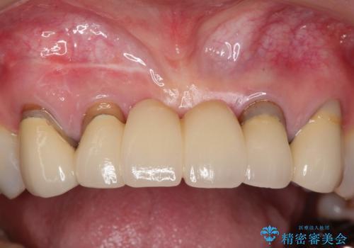 前歯のブリッジの見栄えが悪い→見えないところからしっかりとやり直しをの治療前