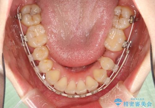 抜歯をして前歯を下げ、ガタつきを取り除く ワイヤー矯正の治療中