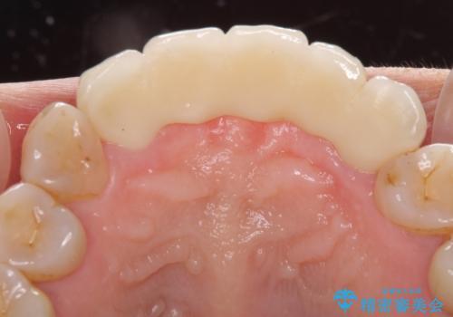 古くなった前歯のブリッジをオールセラミックにの治療後