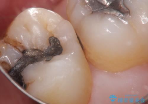 むし歯の治療。 ゴールドインレーによる修復の治療中