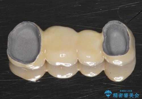 自家歯牙移植 使っていない親知らずを移植 20代女性の治療中