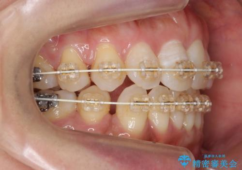 40代女性 前歯の重なり あきらめずに矯正の治療中