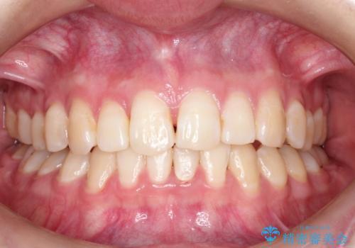 ハーフリンガル ワイヤー矯正による非抜歯・過蓋咬合の治療の治療後