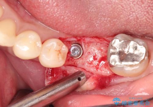 見えない歯周病 長期予後を見据えてインプラントにの治療中