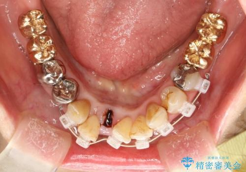 片顎の部分矯正 ワイヤーを用いて短期間でガタつきを改善するの治療中