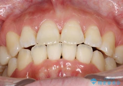 抜歯をして前歯を下げ、ガタつきを取り除く ワイヤー矯正の治療後