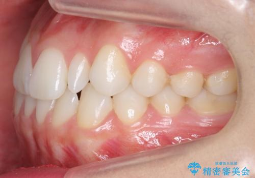 矮小歯 インビザラインとセラミックで美しくの治療前
