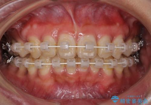 着色した歯肉のピーリング 黒ずみ除去の症例 治療後
