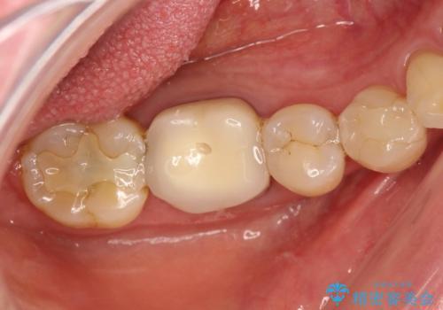 咬んだ時の違和感 顕微鏡で発見された歯の穴を処置し、かみ合わせを回復するの治療前
