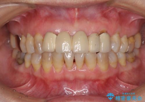 古くなった前歯のブリッジをオールセラミックにの治療前