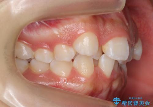 前歯のがたがた 前歯が内側に傾いているの治療前
