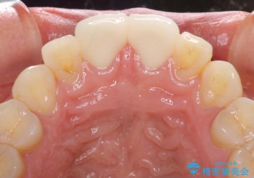 前歯の隙間をオールセラミックで閉じるの治療後