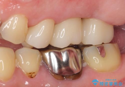長い間虫歯を放置 奥歯のブリッジ治療の治療後