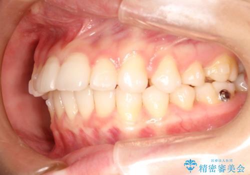 インビザラインで出っ歯を改善する 抜歯をしないinvisalign治療の治療中