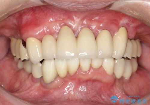 虫歯だらけ、歯周病 崩壊した口腔の再建 フルマウスリコンストラクションの症例 治療後