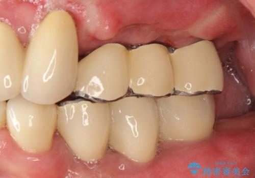 虫歯だらけ、歯周病 崩壊した口腔の再建 フルマウスリコンストラクションの治療後
